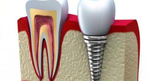 5 плюсов зубных имплантов